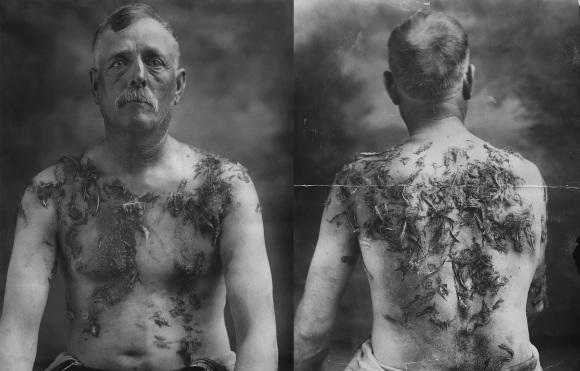 John_Meintz,_punished_during_World_War_I_-_NARA_-_283633_-_restored